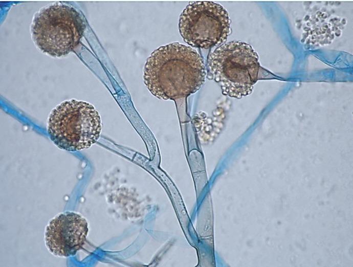 Mucormicosis: el hongo que afecta a pacientes con enfermedades de base o con baja inmunidad